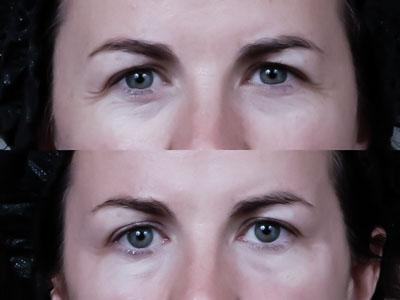 pelleve, pellevé, radiage, ujędrnianie skóry, aparat RF, fale radiowe, ellman, rozgrzewanie skóry właściwej,